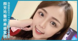 Read more about the article 四環黴素染色,顏芳筠醫師陶瓷貼片案例